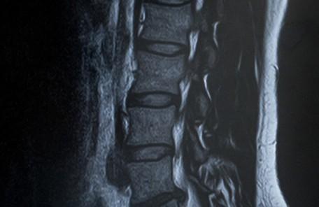 脊柱管正作症